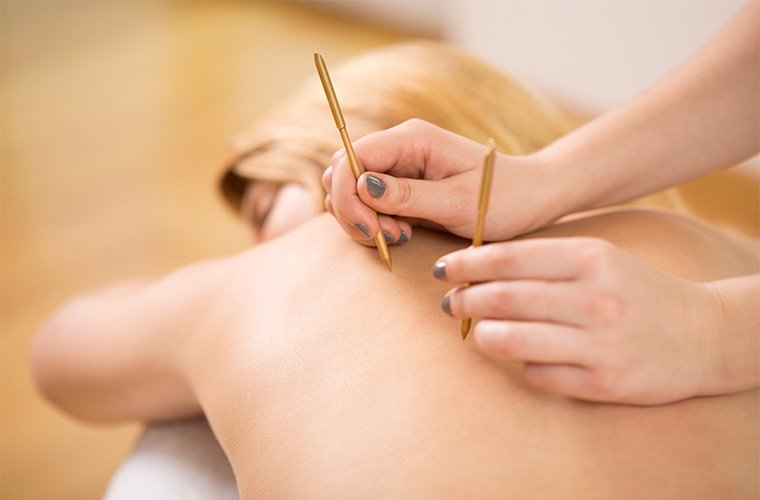 Thumbnail for Why healers are at war over dry needling