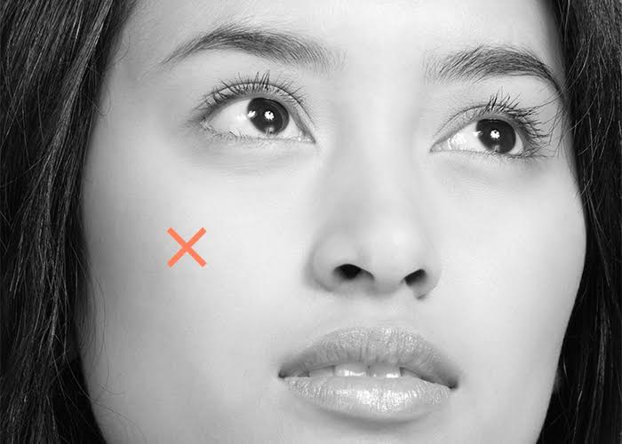 Thumbnail for Wake up with a giant zit? Skin-care experts explain why—and how to get rid of it fast