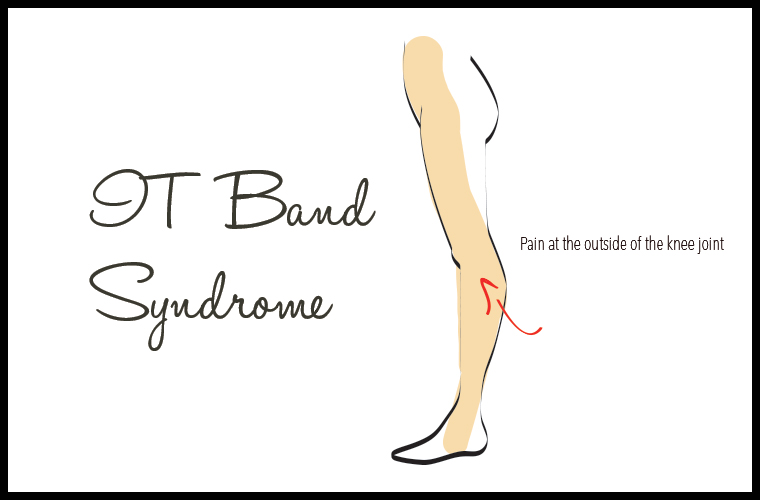 What is IT band syndrome