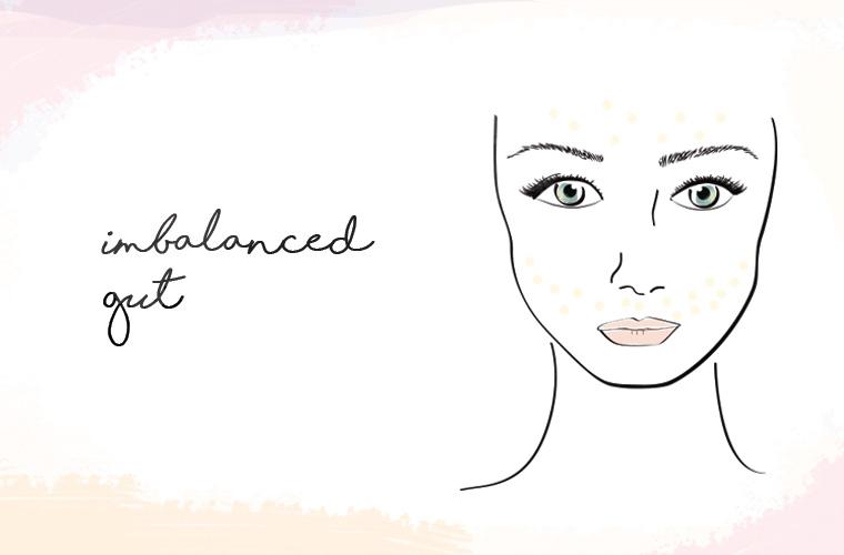 imbalanced gut acne