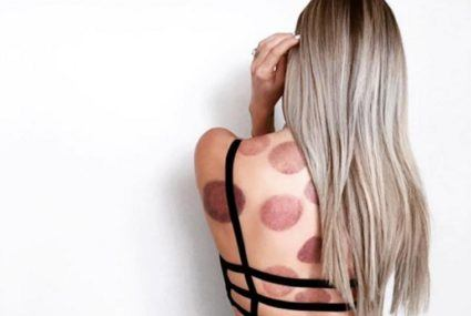 I pulled a Michael Phelps and tried cupping—on my face