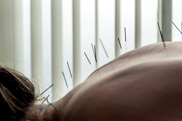 Thumbnail for 4 things I learned from trying acupuncture for the first time