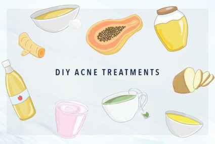 The DIY acne treatments that actually work, according to our editors