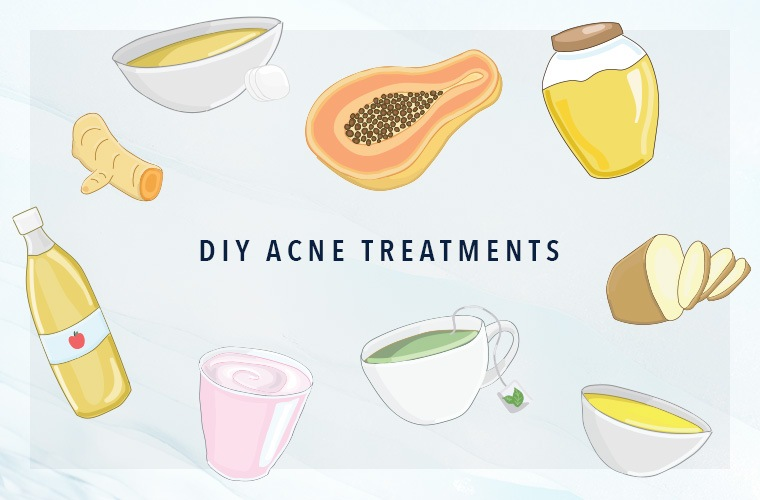Thumbnail for The DIY acne treatments that actually work, according to our editors