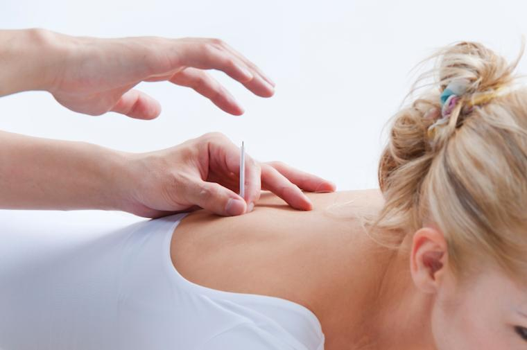acupuncture what you need to know