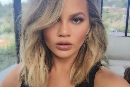 Chrissy Teigen says what we're all thinking about stretch marks