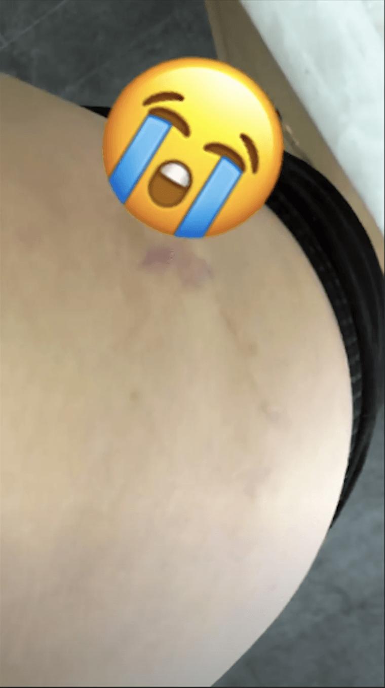 Chrissy teigen stretch marks story