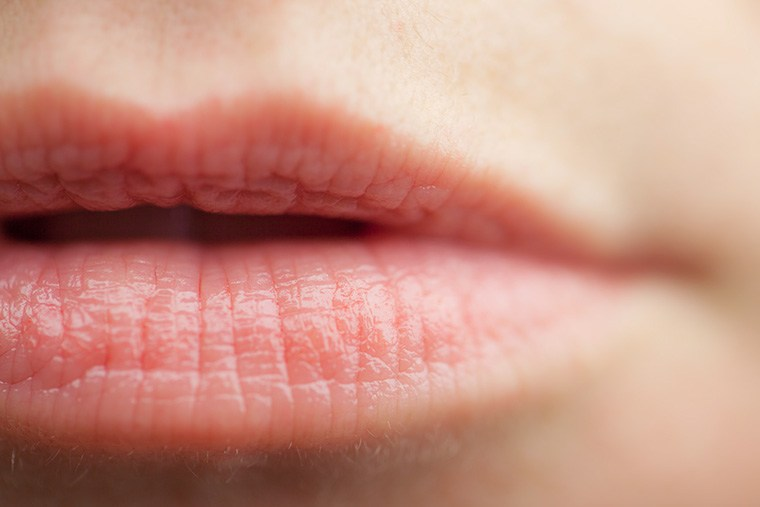 Thumbnail for 6 ways you may be giving yourself chapped lips—without realizing it