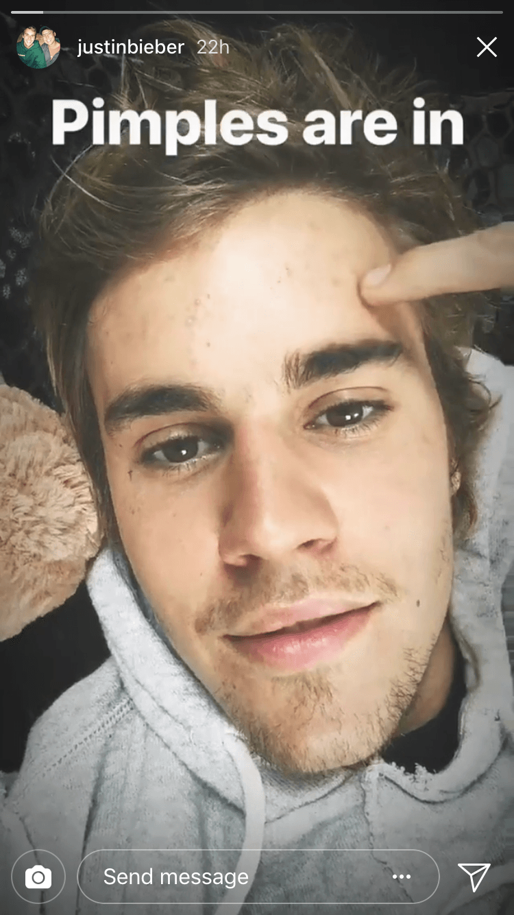 Justin Bieber is on board with the pimples positivity motion
