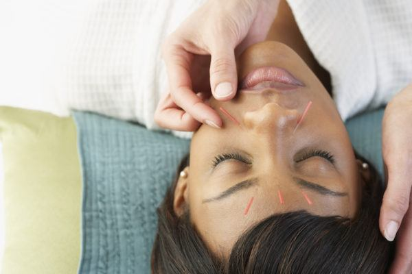 Acupuncture is officially going mainstream—but will it work for you?