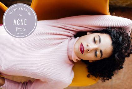 Acne week