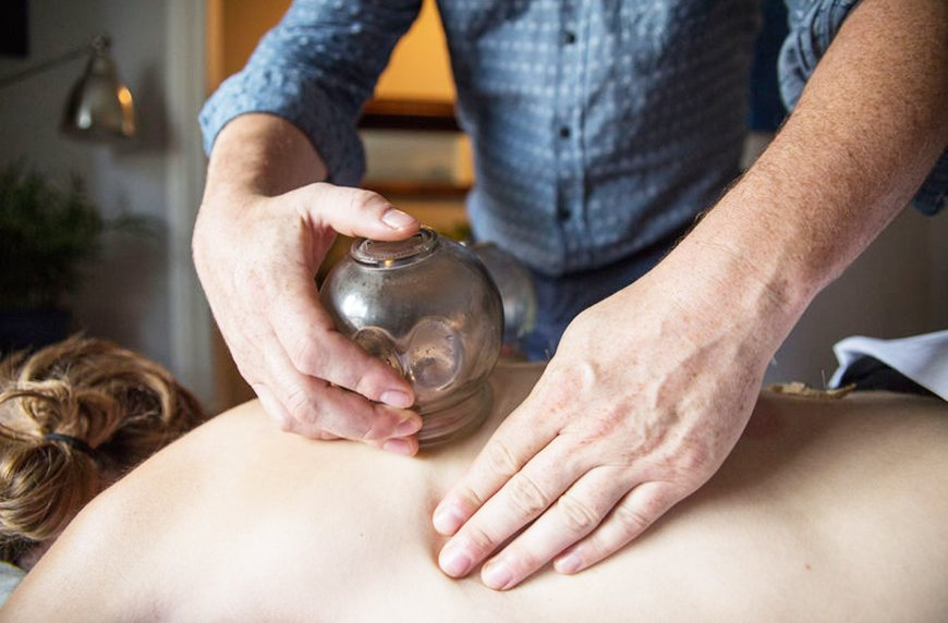 Thumbnail for 5 go-to spots for cupping therapy in NYC