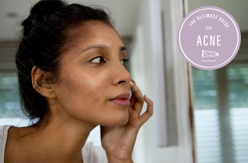 Derms share how to get rid of acne scarring | Well+Good