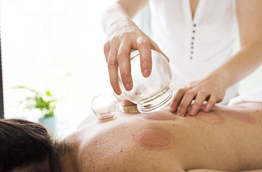 5 cupping therapy options in Chicago worth trying | Well+Good