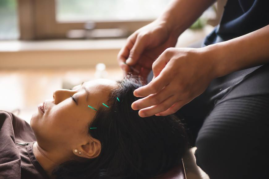 Thumbnail for Is acupuncture the latest old-but-new-again wellness practice to go mainstream?
