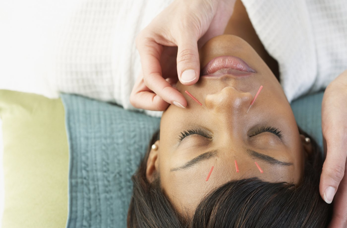 Thumbnail for Curious About Acupuncture? Here's What You Should Know Before Trying It