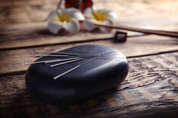 Asked and answered: Does getting acupuncture hurt—even a little bit?
