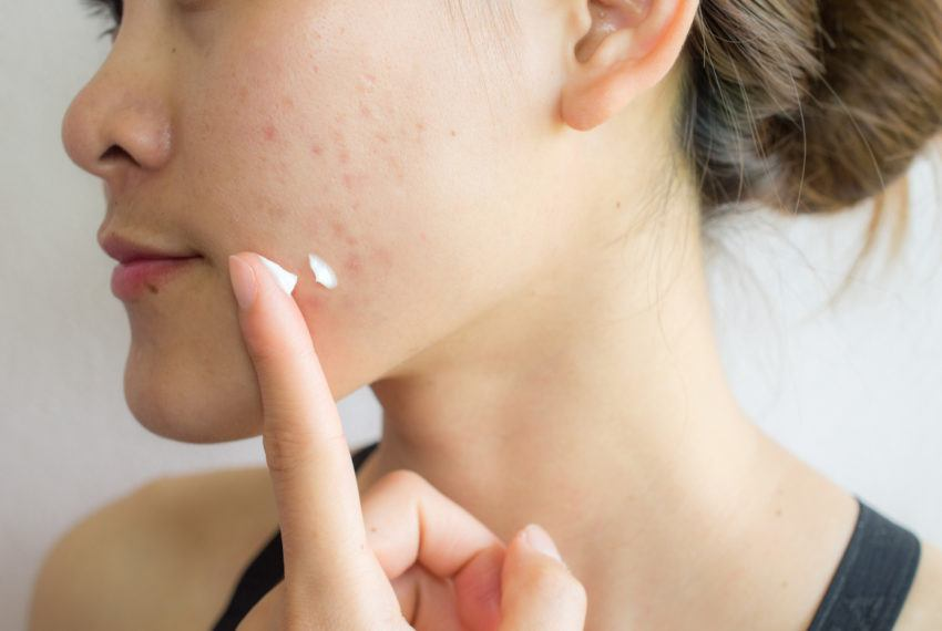 The 5 most common questions Dr. Pimple Popper gets about acne