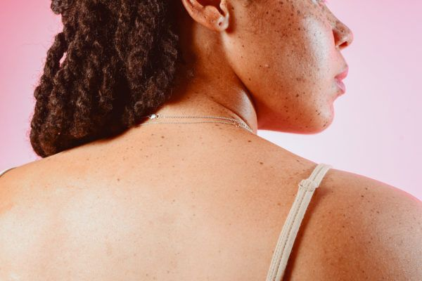 How to get rid of those pesky whiteheads, according to dermatologists