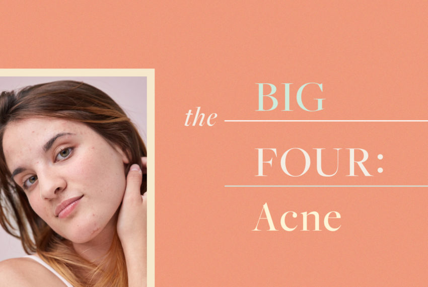 These 4 ingredients are the only ones you need to stop acne in its tracks