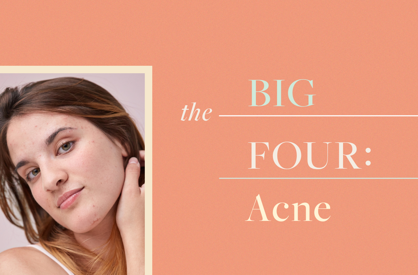 Thumbnail for These 4 Ingredients Are the Only Ones You Need to Stop Acne in Its Tracks