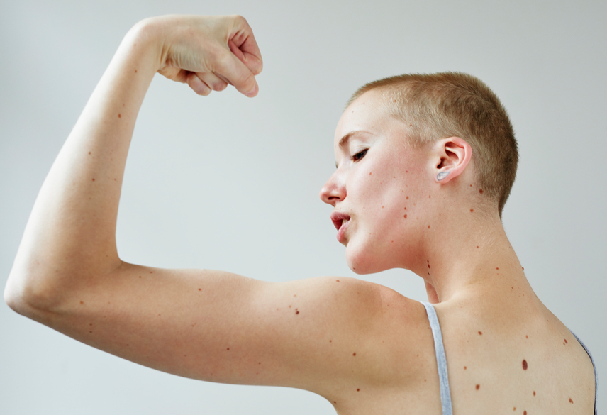 Thumbnail for Muscle Mass Is Hard to Lose—so Don't Sweat It, Okay?