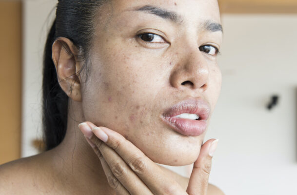 Every Last (Sort of Disgusting) Detail Dermatologists Want You To Know About Skin Purging