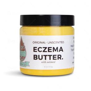 best lotions for eczema