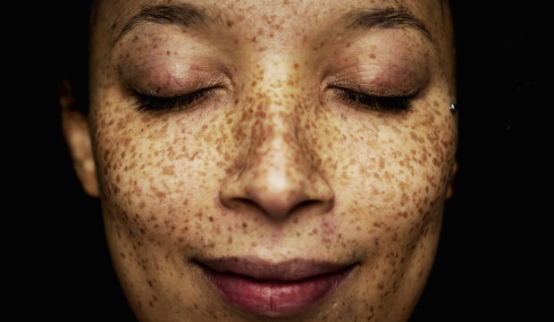 'I'm a Dermatologist, and This Easy Trick Will Tell You Exactly What Your Skin Type Is'