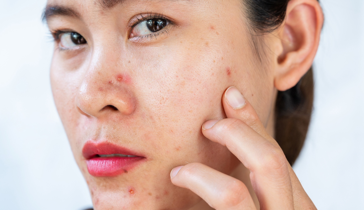 Thumbnail for 'I'm a Dermatologist, and This Is the Best Ingredient for Fighting Acne on Sensitive Skin'