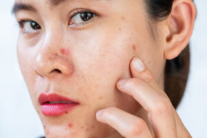 'I'm a Dermatologist, and This Is the Best Ingredient for Fighting Acne on Sensitive Skin'